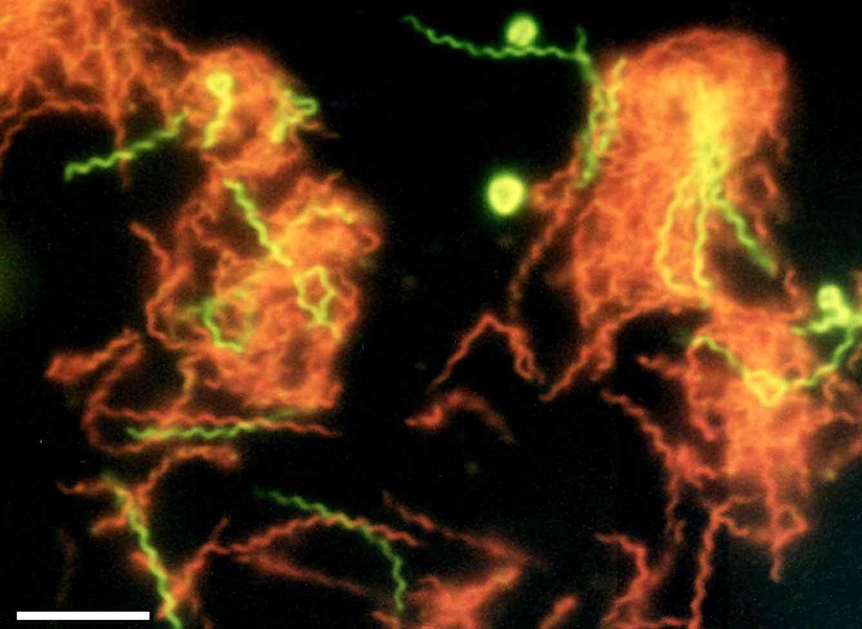 Microphotographie de Spirochaeta americana rendue fluorescente. Les formes spiralées rouge sont des cellules mortes, les vertes sont en vie.